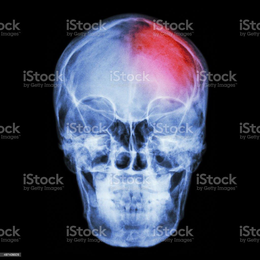 Film X-ray skull and headache. (Stroke,Cerebrovascular accident) royalty-free stock photo