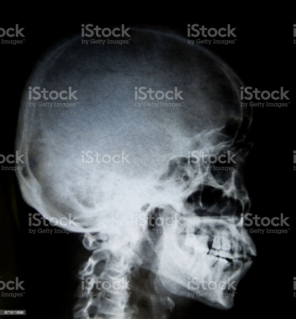 Film x-ray Skull lateral : show normal human's skull and cervical spine and blank area at right side stock photo