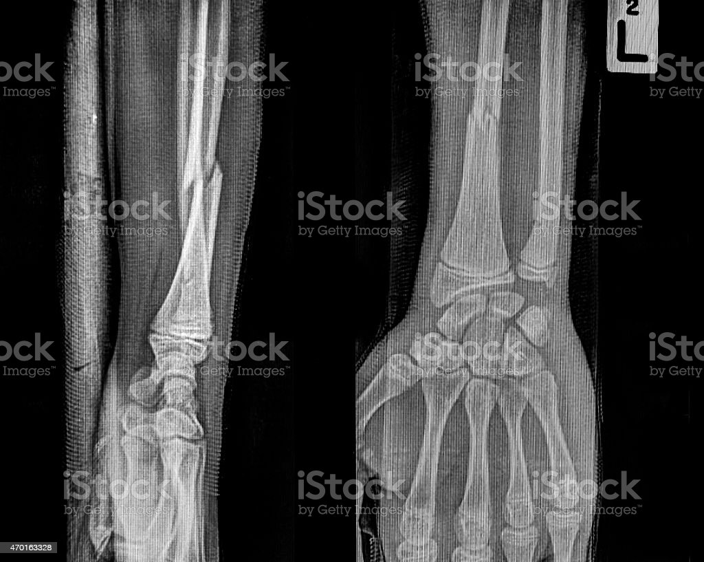 film x-ray wrist show fracture distal radius stock photo