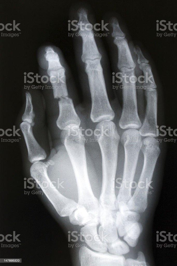 finger fracture stock photo