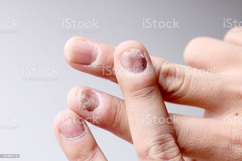 Finger with onychomycosis. - soft focus stock photo