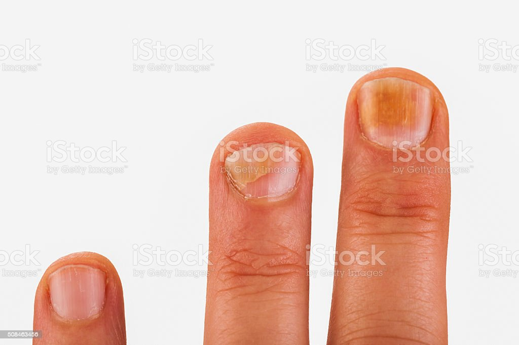 Fingernails with nail fungus stock photo