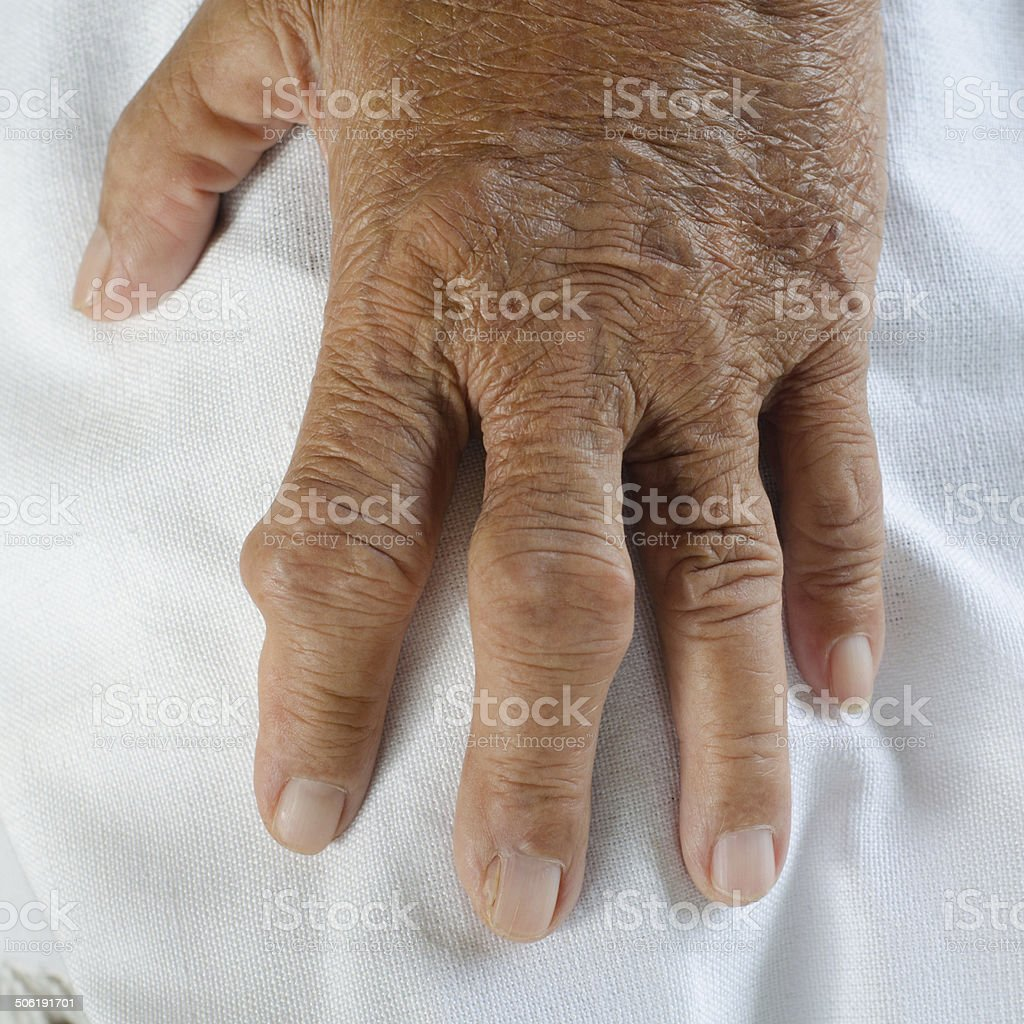 Fingers of patients with gout. stock photo