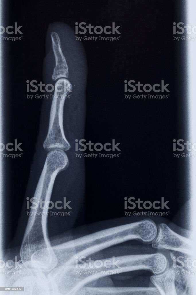 3 fingers radiography royalty-free stock photo