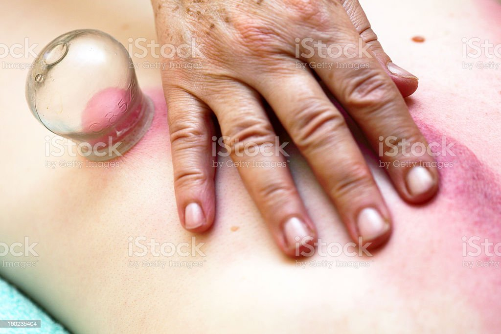 fire cupping treatment to cup sb therapy woman royalty-free stock photo