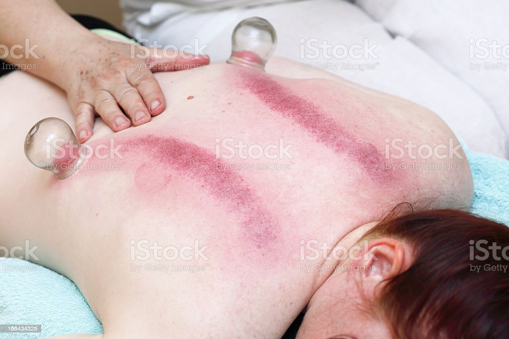 fire cupping treatment to cup sb therapy woman stock photo