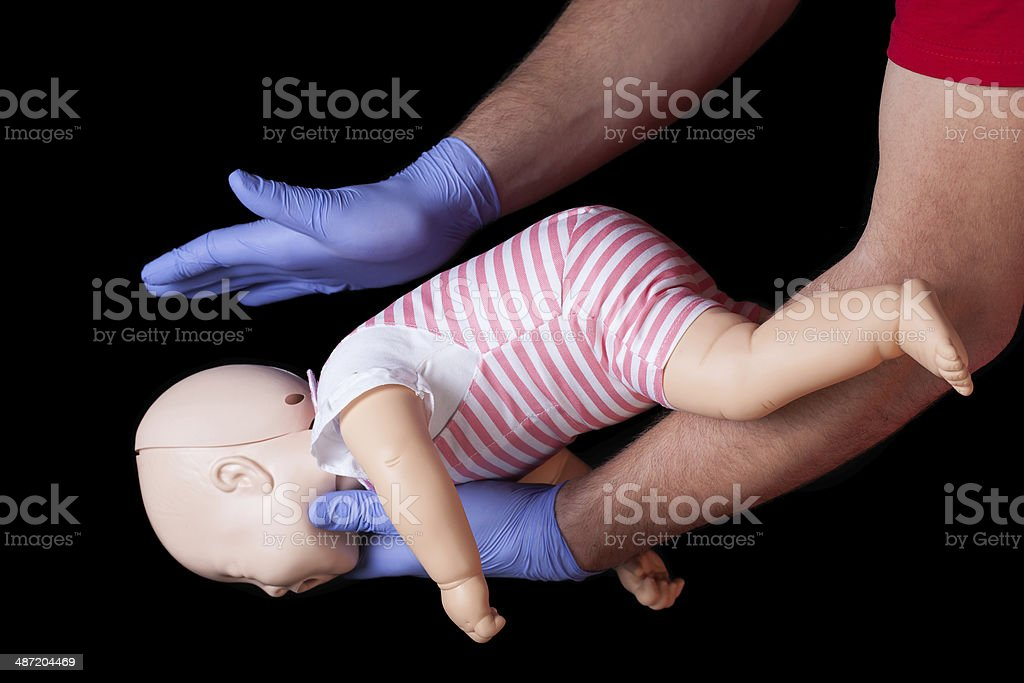 First aid for choking infant stock photo