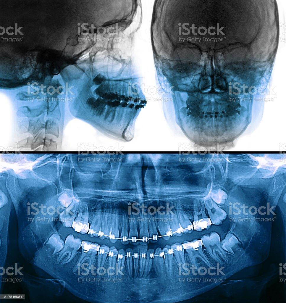 fixed appliance x-ray, orthodontic dental treatment stock photo