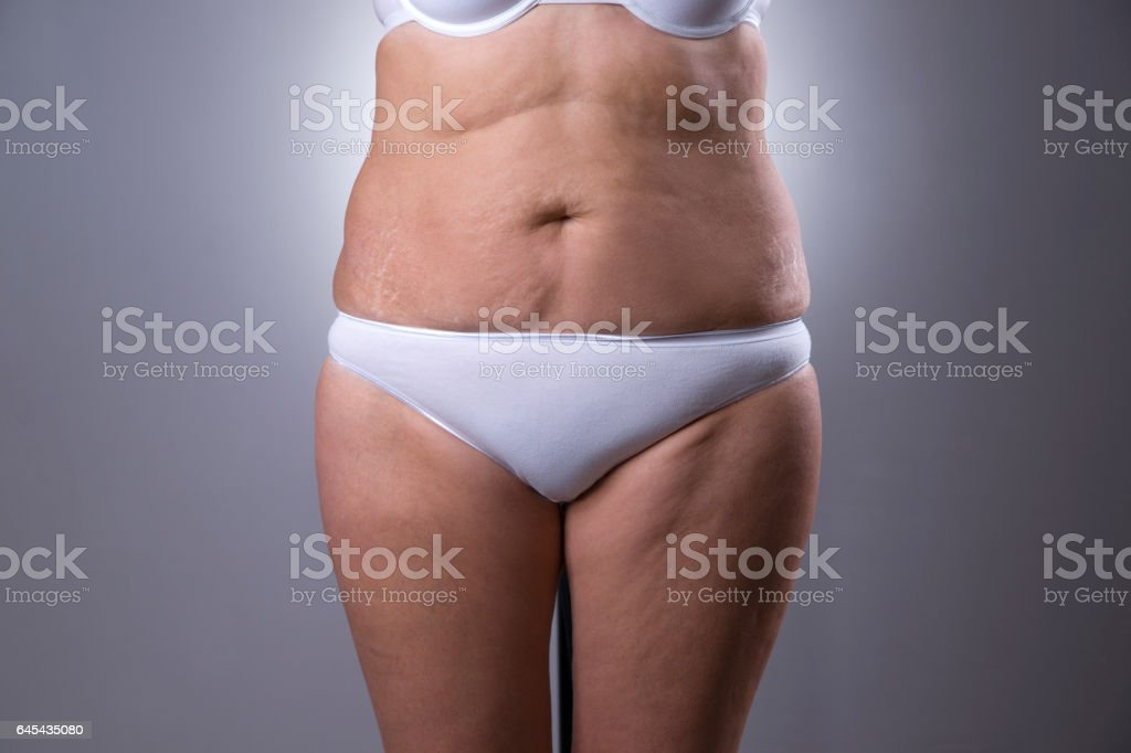 Flabby woman's belly with stretch marks stock photo
