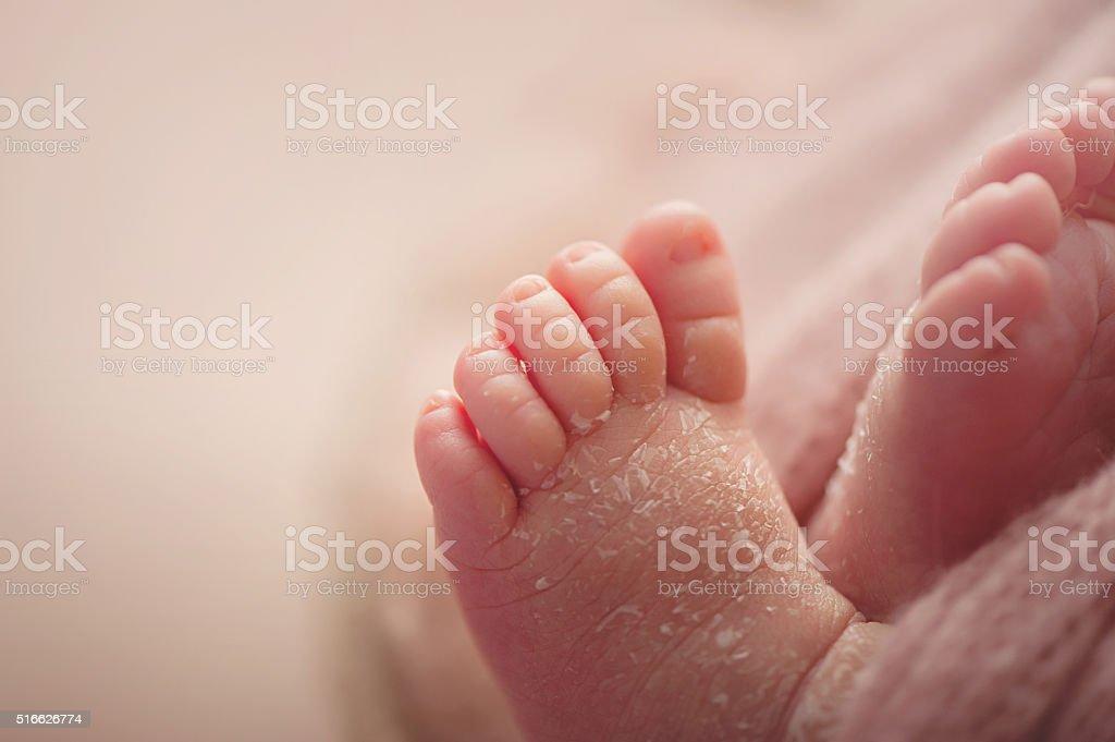 Flaky Newborn Feet stock photo