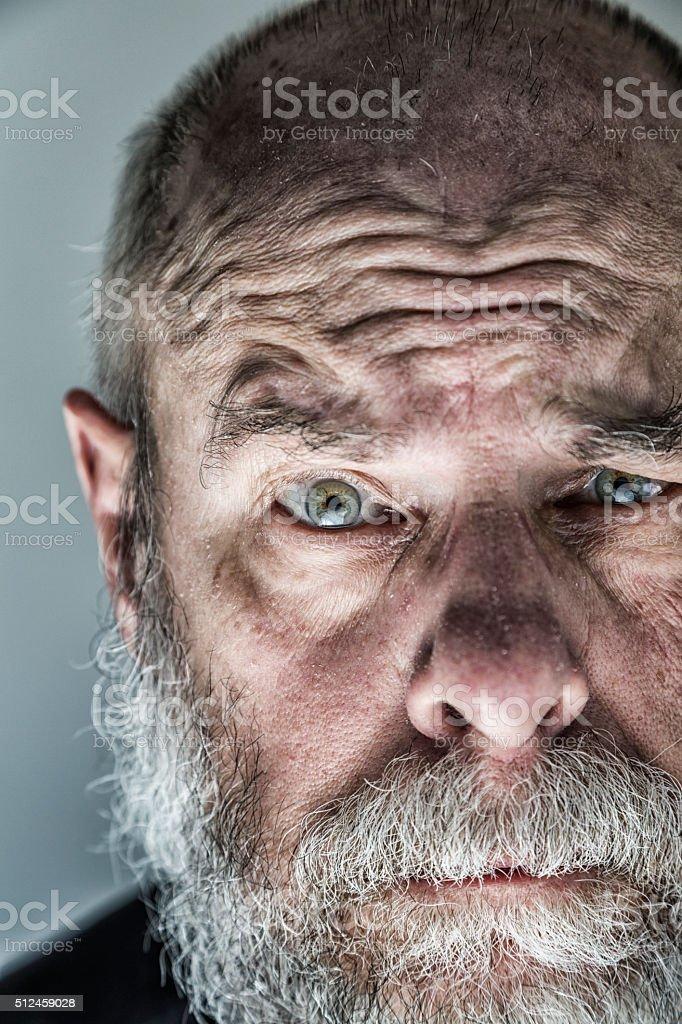 Flaky Skin Senior Adult Man Raised Eyebrow Skeptical Close-Up stock photo