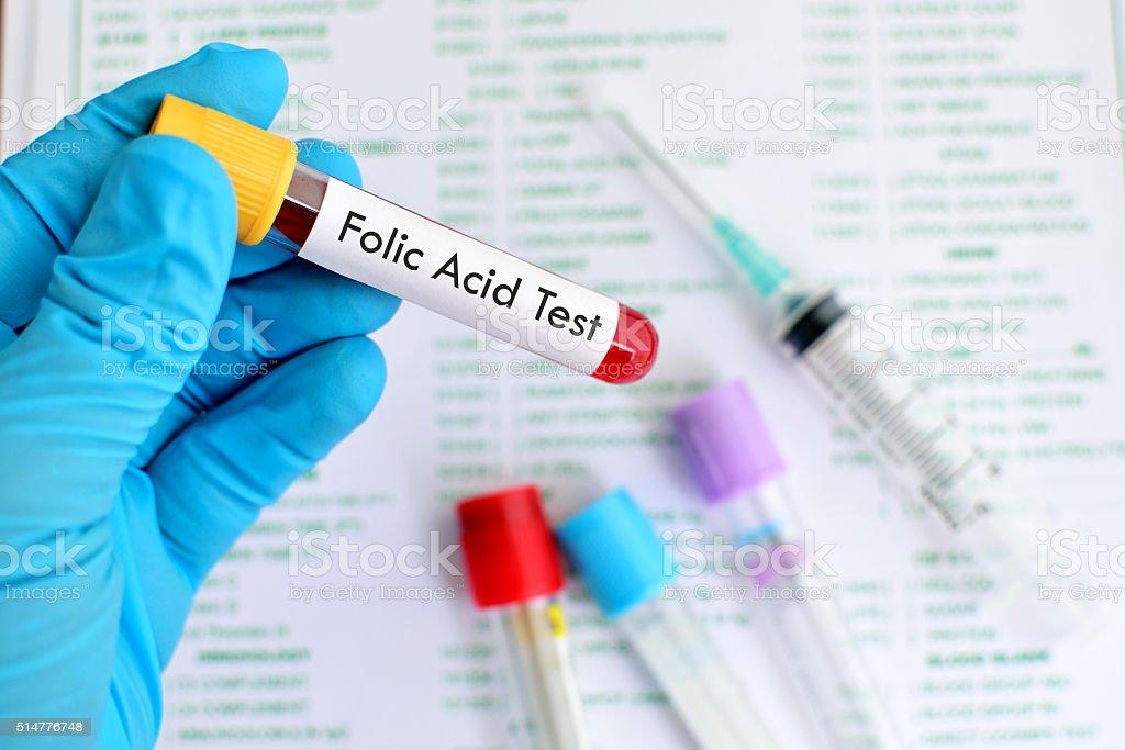 Folic acid test stock photo