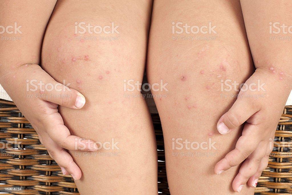 Folliculitis On Child's Leg and Hand stock photo