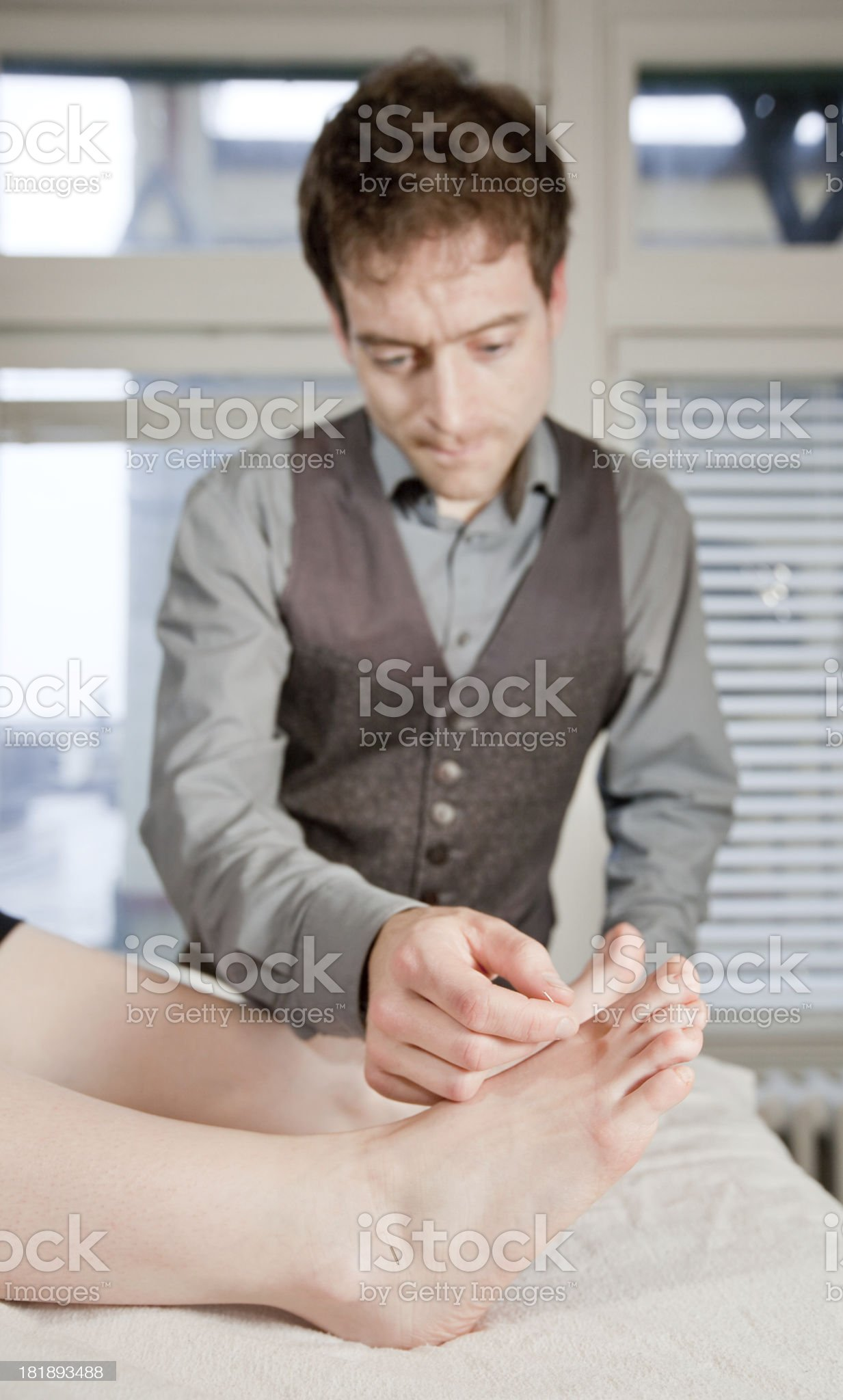 Foot Acupuncture royalty-free stock photo