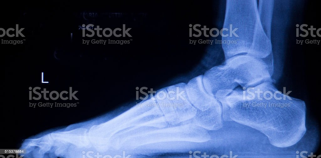 Foot and toes injury xray scan stock photo