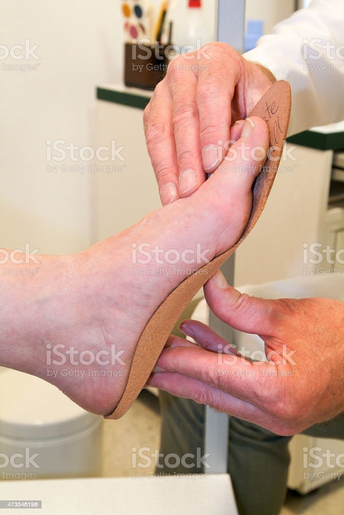 A foot being measured for orthopedic insoles by a doctor stock photo