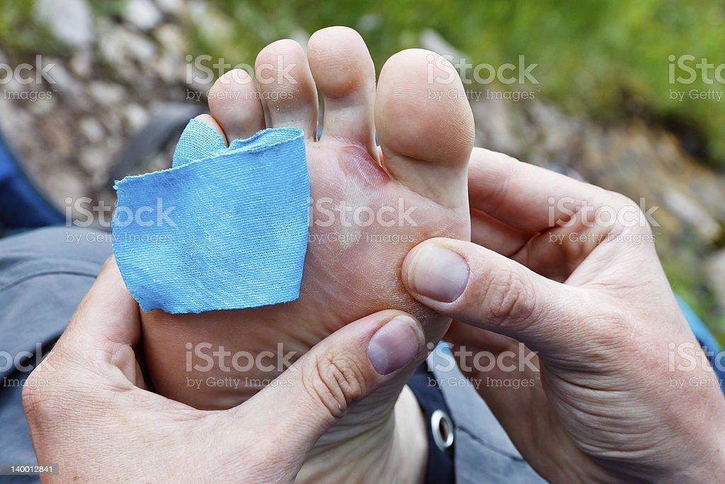 Foot Blister stock photo