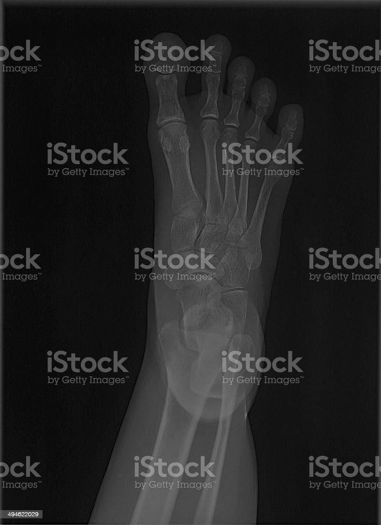 foot bone x-ray royalty-free stock photo
