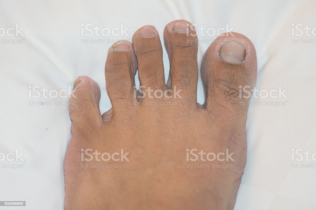 foot disease, HFMD stock photo