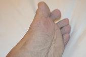 foot disease, HFMD