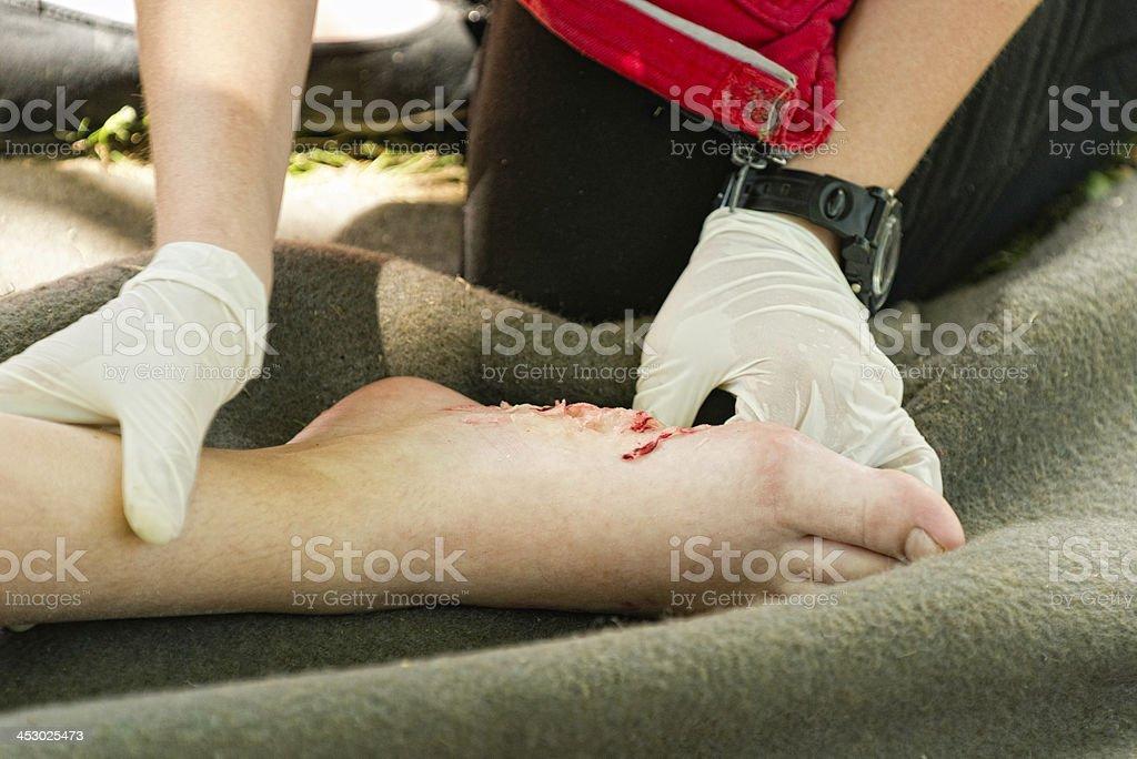 Foot injury royalty-free stock photo