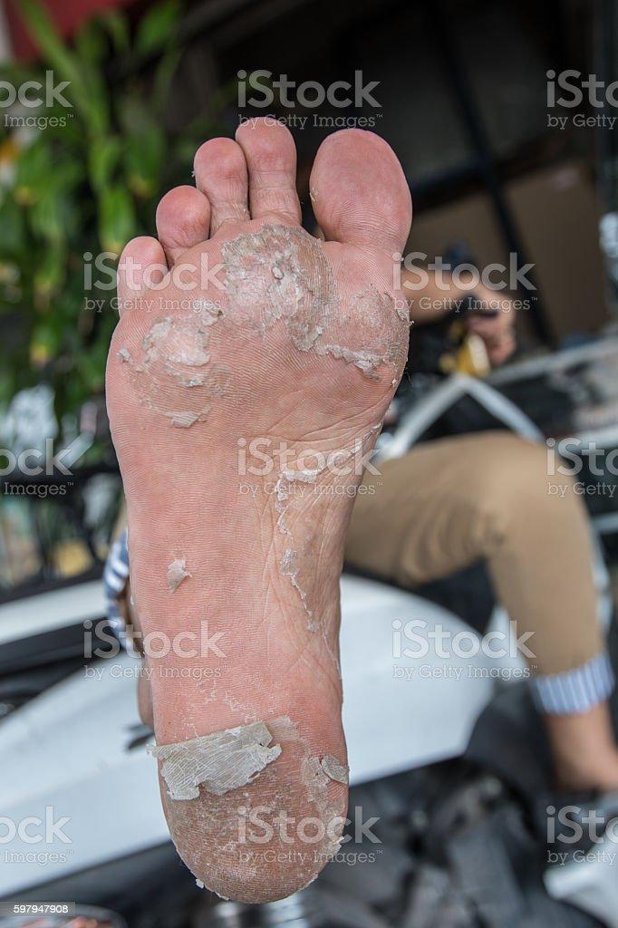 Foot peel stock photo