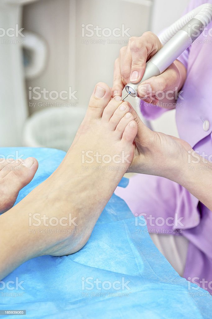 foot procedure royalty-free stock photo
