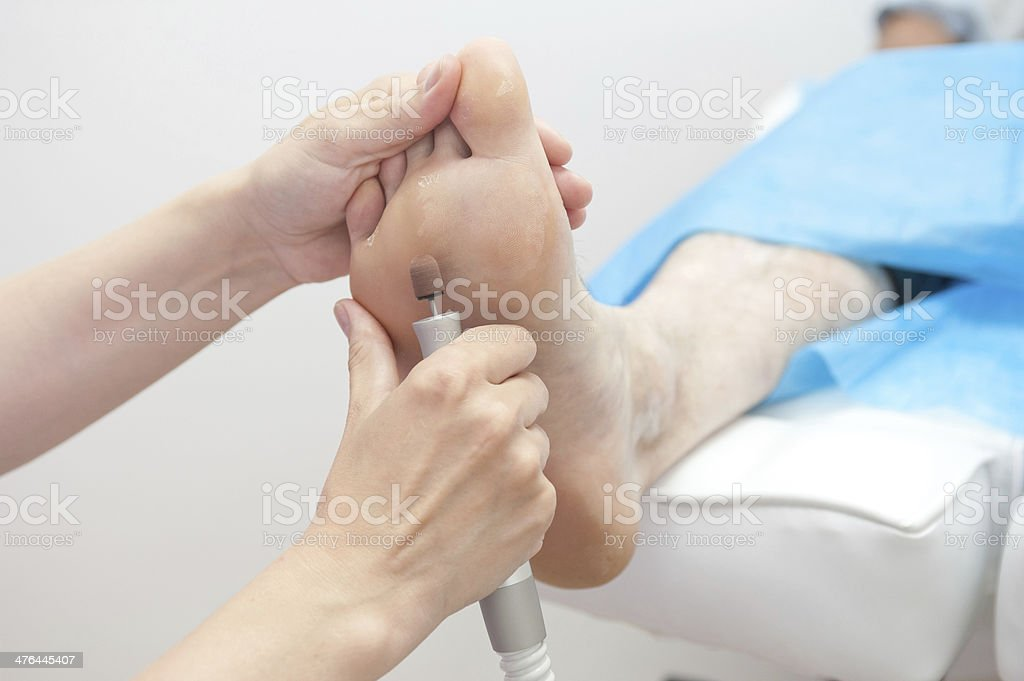foot procedure stock photo