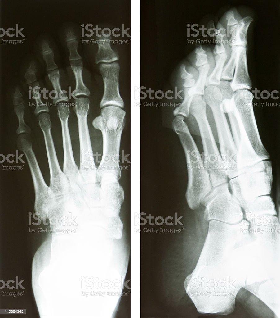 foot radiography royalty-free stock photo