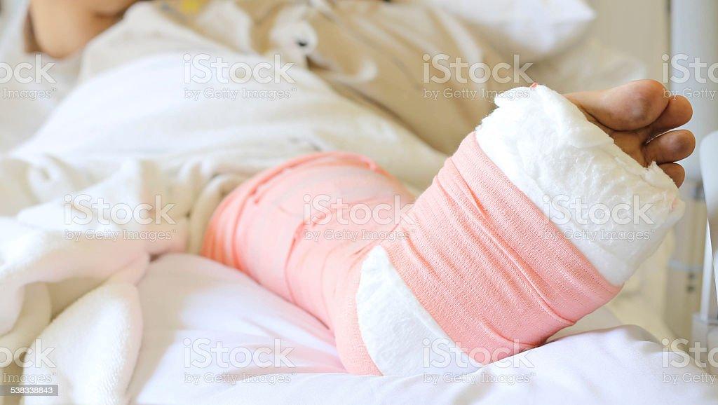 Foot splint for  broken bones. stock photo
