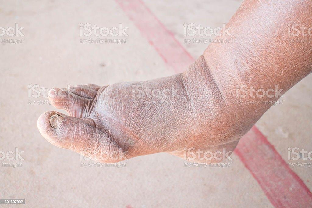 Foot swelling on diabetic Nephropathy stock photo
