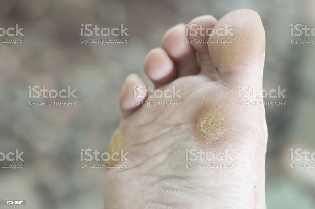foot wart stock photo