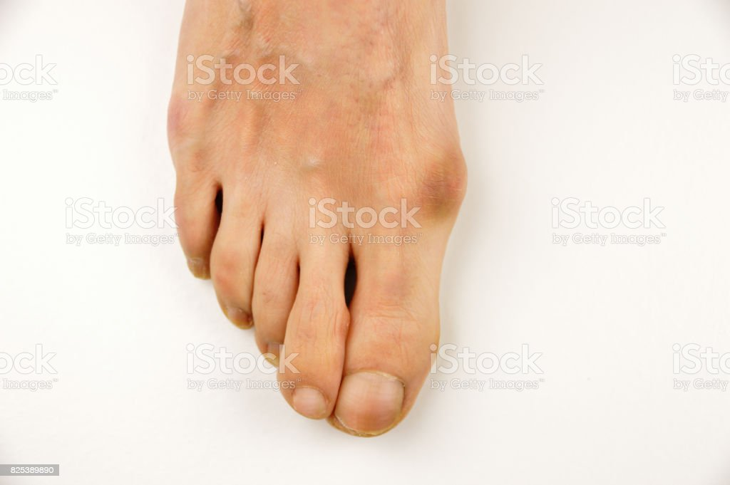Foot with a bunion stock photo