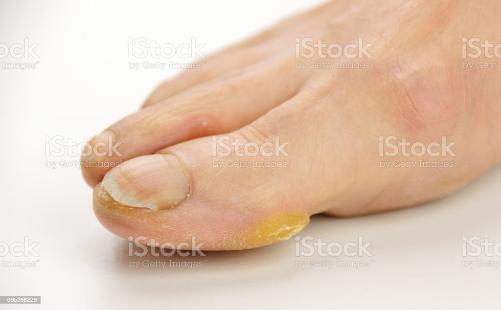 foot with calluses stock photo