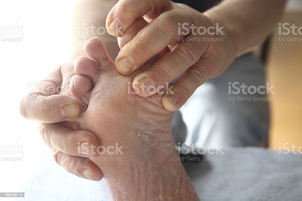 foot with dry, peeling skin stock photo