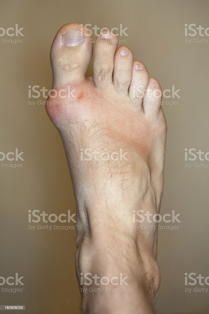 Foot with Gout and Bunion stock photo