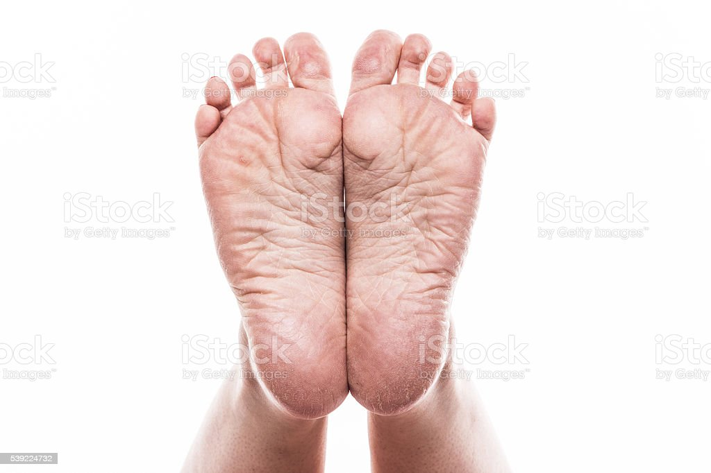 foot with pedicure and poor over-dry skin on the heels stock photo