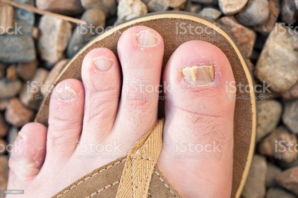 Foot with Toenail Fungus Close-Up in a Sandal Outside stock photo
