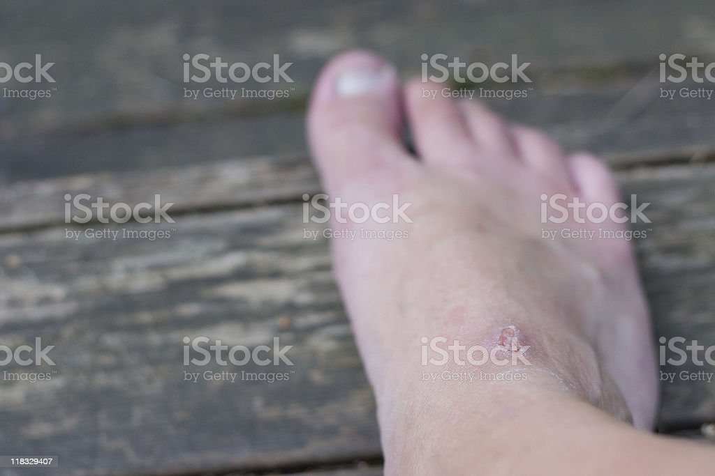 foot wound royalty-free stock photo