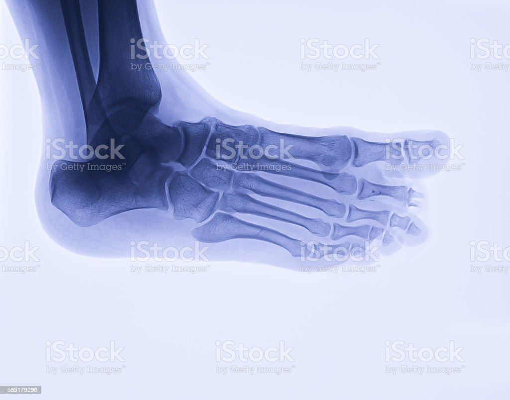 Foot x-ray image, oblique view stock photo