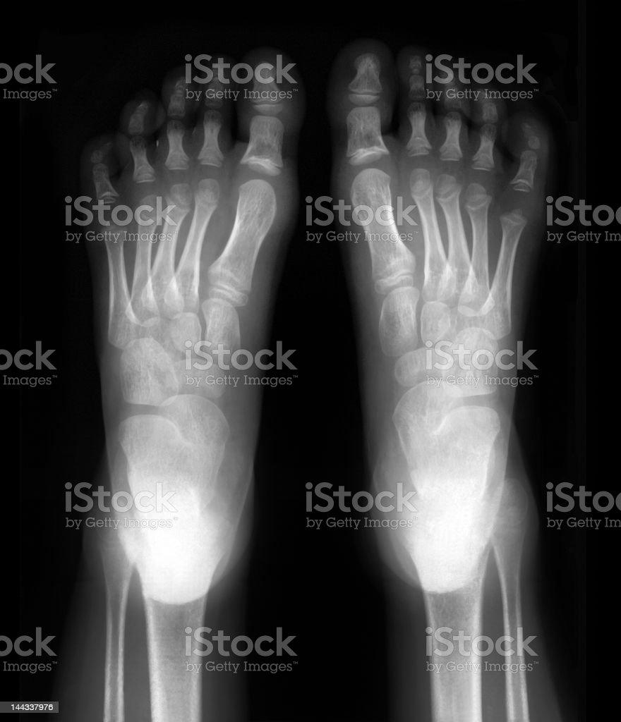 Foot x-ray royalty-free stock photo
