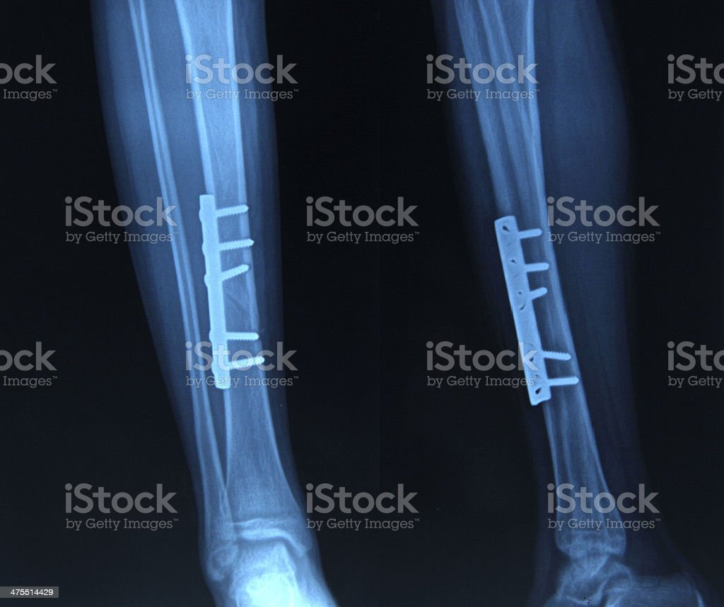 Foot xray royalty-free stock photo
