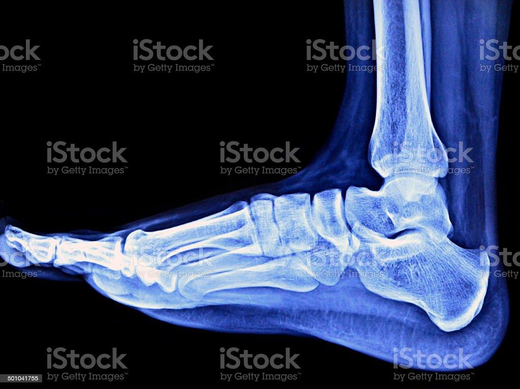 Foot Xray stock photo