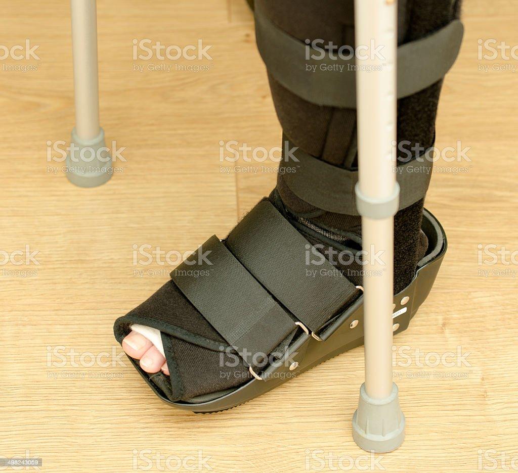 Foot/leg injury royalty-free stock photo