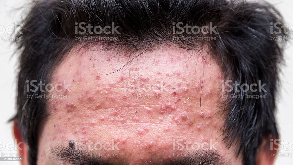 fore head of man having varicella blister or chickenpox stock photo