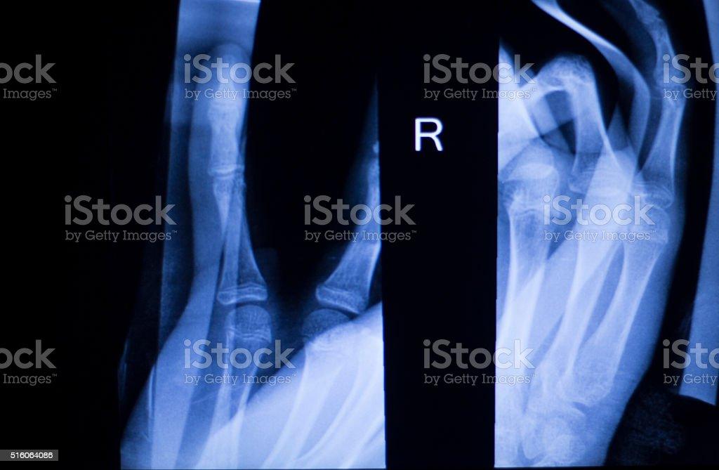 Forearm arm and elbow xray scan stock photo