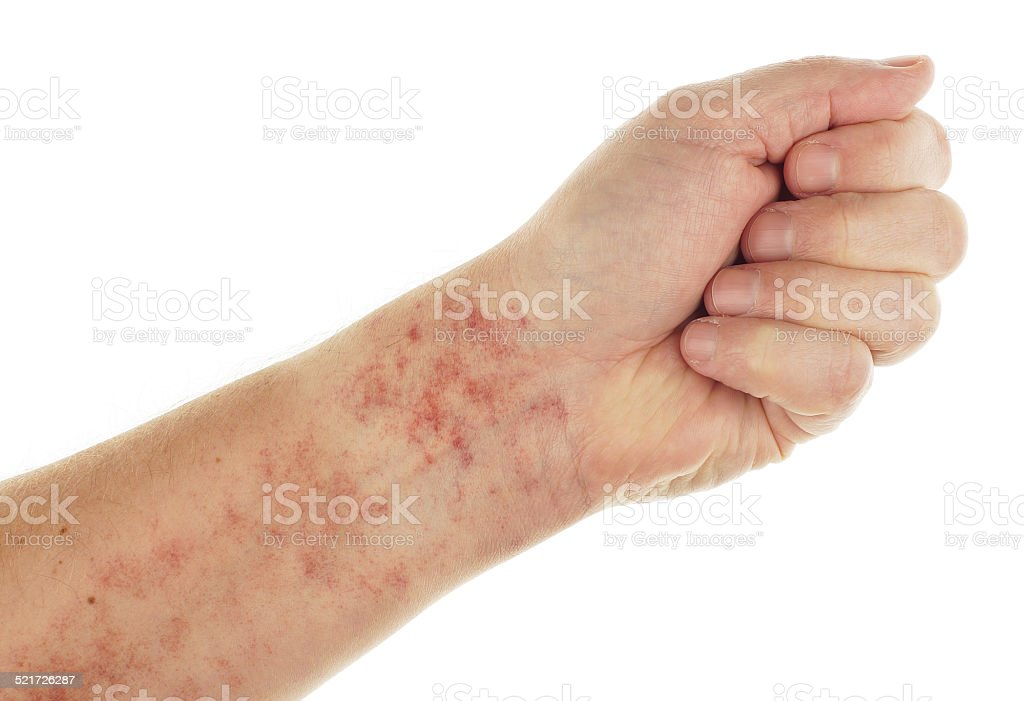 Forearm showing Capillaritis stock photo