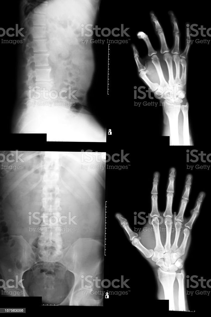 four x-ray images on one film-trauma radiographs  XXXL stock photo