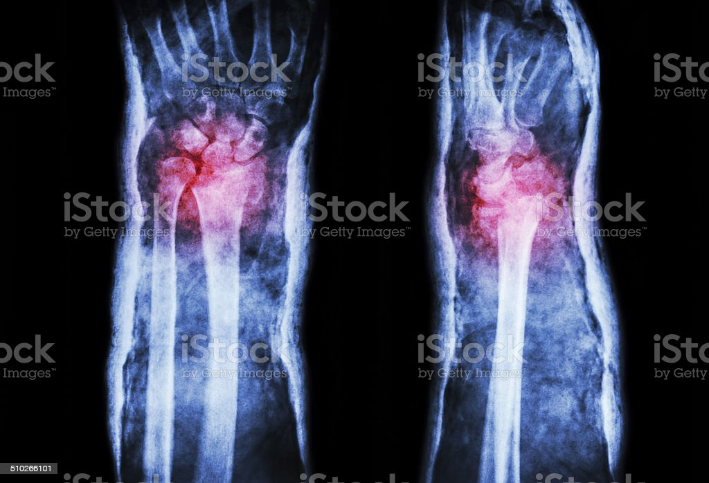fracture distal radius (Colles' fracture) and cast (Front & Side) stock photo