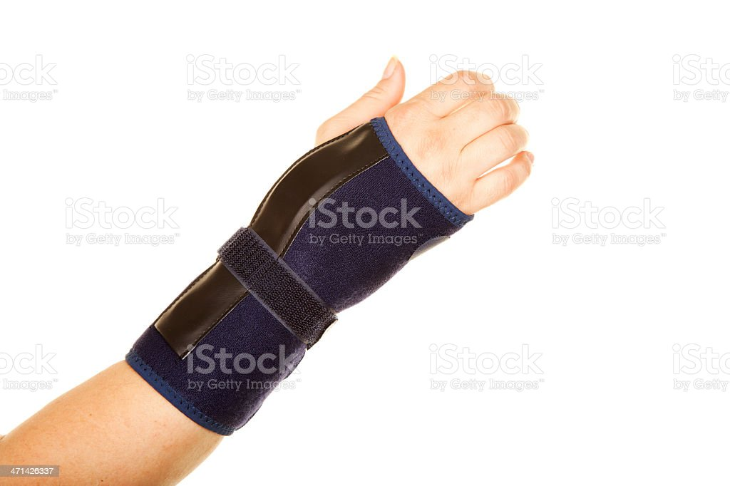 Fracture of arm royalty-free stock photo
